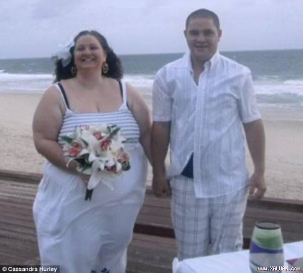 Hurley trong đám cưới vào năm 2010, khi đó cô nặng 147kg