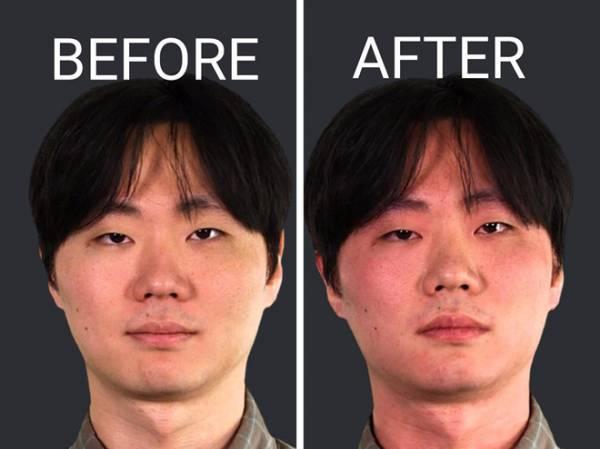 Phản ứng xả cồn gây tình trạng đỏ mắt sau khi con người uống rượu bia. Ảnh: Busiess Insider.