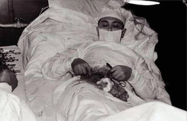 Bức ảnh bác sĩ tự mổ bụng chính mình gây sốt trên toàn thế giới.
